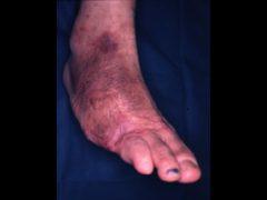 大きな足壊疽では創をふさぐため植皮術が併用される