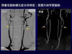 下肢動脈硬化症における頚動脈病変は25%に発見され、手術が必要 a:術前 b:狭窄部の形成術後