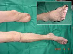 第1趾先端の小壊疽に対する大切断