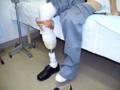 右下肢膝下切断後の義足