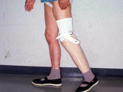 膝下切断後の義足をつけての歩行訓練(リハビリテーション)