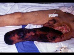 動脈硬化症の急性血栓症による広範壊疽
