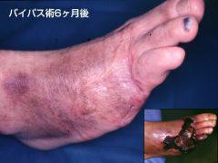 急性足壊疽に対する緊急血管移植医よる足救済