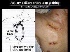 上肢の血管が使用できなくなった例には人工血管で腋窩動脈に透析路を作成することができる。