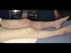 左下肢動脈急性閉塞による高度の血行障害で紫斑を呈する