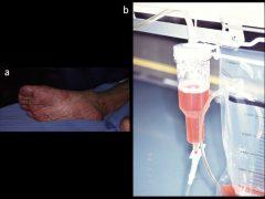 右下肢急性動脈閉塞で筋肉融解により赤色のミオグロビンが尿に排出される