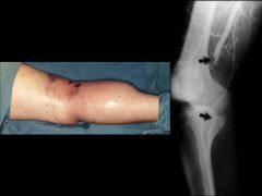 丸太による膝窩動脈の挫滅外傷