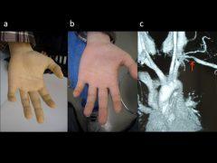 左動脈圧迫閉塞による手の蒼白と解除後の発赤