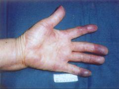 動脈性胸郭出口症候群にみられた手の塞栓症による高度の手指血行障害
