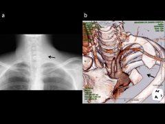 胸郭出口症候群の手術では第一肋骨を根本まで切除することが再発防止に重要