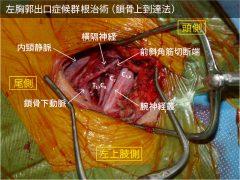 左胸郭出口症候群根治術(鎖骨上到達法)における神経・血管の剥離図