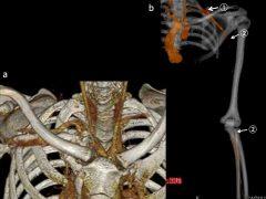 第一肋骨形成異常による動脈性胸郭出口症候群。鎖骨下動脈-上腕動脈の血栓閉塞による高度の上肢血行障害