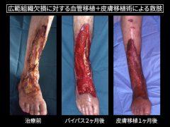 足より中枢部の広範組織欠損とバイパス後2ヶ月目と皮膚移植1カ月後。