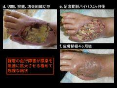 血行障害+感染による急性悪化では緊急血管移植により壊疽の拡大は停止し、治癒に向かう