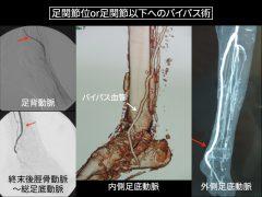 下肢救済のための足部動脈へのいろいろなバイパス法:足の甲や裏側の1 ? 1.5mmの太さの血管に血管移植をする