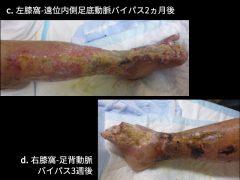 血管移植後、足部の血行が徐々に回復している所見