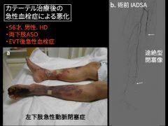 カテーテル治療後早期に血栓症〔矢印が閉塞〕による急性悪化例では緊急血管移植が必要