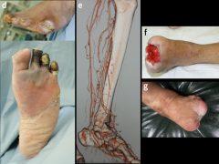 カテーテル治療で拡張した部分は数か月後に再び狭くなり、壊疽が再発した〔図 d〕。それに対し血管移植手術を行い下肢は救済された〔図 e-g〕