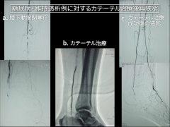 広範囲なひざい狭窄・閉塞に対しカテーテル治療前、中、後の血管造影