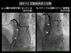 下肢血行障害では、その60%に心臓の血管病変を合併するため、それに対するカテーテル治療を必要とする場合が少なくない