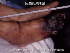 足の半分が壊疽になっても踵を救済して、下肢切断を避けることができます