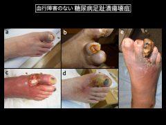 糖尿病足では感染により広範壊疽を発生します。