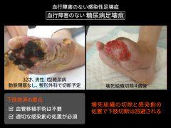 血行障害のない壊疽では壊疽を切除し、膿を排除するだけで下肢救済が可能です