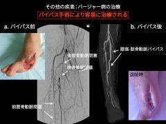 まず禁煙を開始する。それ後、血管移植手術をすれば潰瘍・壊疽は容易に治癒し社会復帰できる。禁煙は受動喫煙を含めて生涯厳守されれば再発の可能性はない