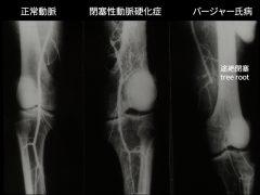 バージャー病の下肢動脈病変の特徴