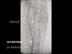 バージャー病の特徴的動脈閉塞像