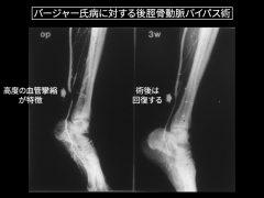 足首上部の動脈へのバイパス術血管造影