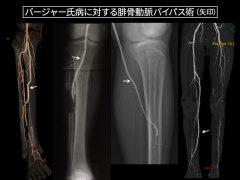 下腿深部の腓骨動脈へのバイパス:様々な部位へのバイパス術
