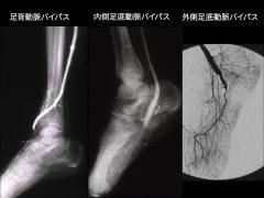 足背動脈、内側、外側足底動脈 へのバイパスが多く行われる
