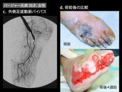 広範な壊疽でもバイパス後は急速に肉芽の形成が起こる