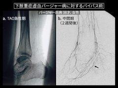 バージャー病の急性期では血管が写らないが、中間期まで待つとバイパス可能な血管があらわれてくる