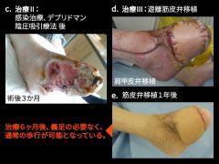 足壊疽で大きな欠損部に皮膚筋組織移植をして救肢が達成される