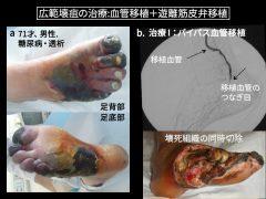 足広範壊疽の救肢では最初に血管移植を行い壊疽を切除する