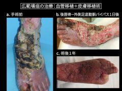 体重のかからに部分の下肢救済はバイパスと植皮により容易に救済可能