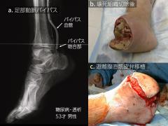 遊離腹直筋皮弁による足切断端の閉創