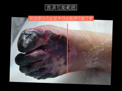 足部広範壊疽