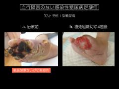 感染創に対する基本的な外科処置(壊死組織切除と 感染創処置)で下肢切断は回避される。