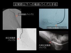 血管移植手術