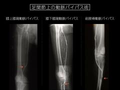 膝上の動脈閉塞症に対する血管移植手術